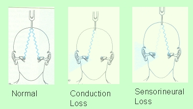 Hearing loss weber test explanation